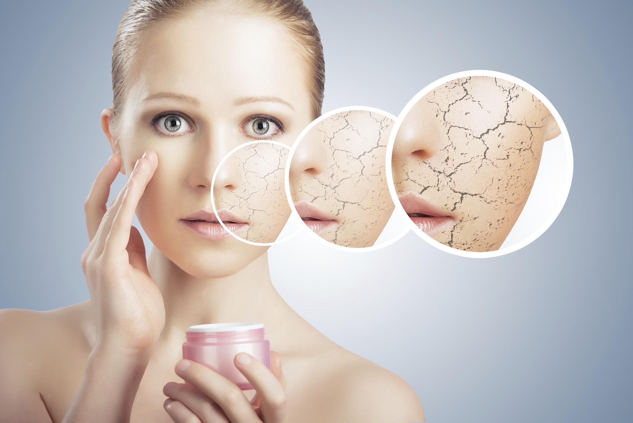 kuru-cilt-tipi - yağlı cilt için bakım önerileri soğuk havalarda bakım yöntemleri kuru cilt için bakım önerileri karma cilt için bakım önerileri cilt tipleri cildi koruma yöntemleri